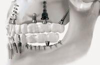השתלת שיניים בזאלית (אילוסטרציה) צילום: המרכז להשתלה בזאלית