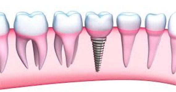 כל מה שצריך לדעת אודות השתלות שיניים