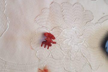 אלעד: פעוטה בת שמונה חודשים נחנקה מבליעת סיכת ראש וניצלה בנס