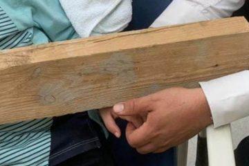 בני ברק: הילד הגיע עם קרש מחובר ליד במסמר