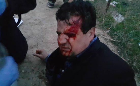 """ח""""כ איימן עודה לאחר שנפגע באירועי אום אל-חיראן"""