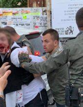 הוגשה תלונה נגד השוטרים שהכו באכזריות