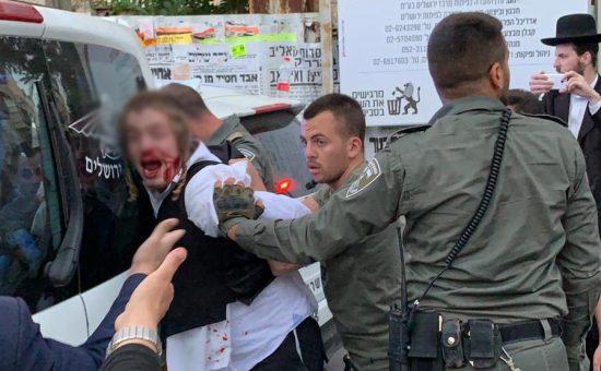 שוטרים תקפו נערחרדי