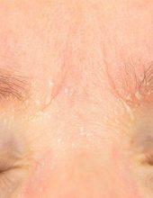 לחץ וחרדה משפיעים  על עור הפנים